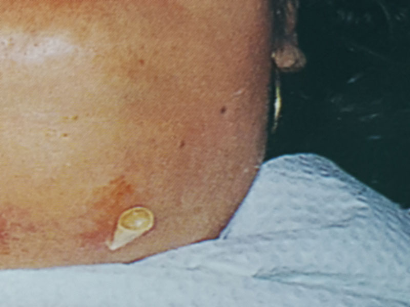 ludwig-angina2.jpg
