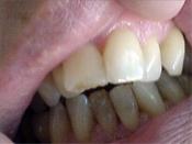 xri_orthodontiki_2.jpg