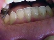 xri_nosoi_periodontiou2.jpg